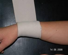 Cât timp să purtați un bandaj elastic pentru varice
