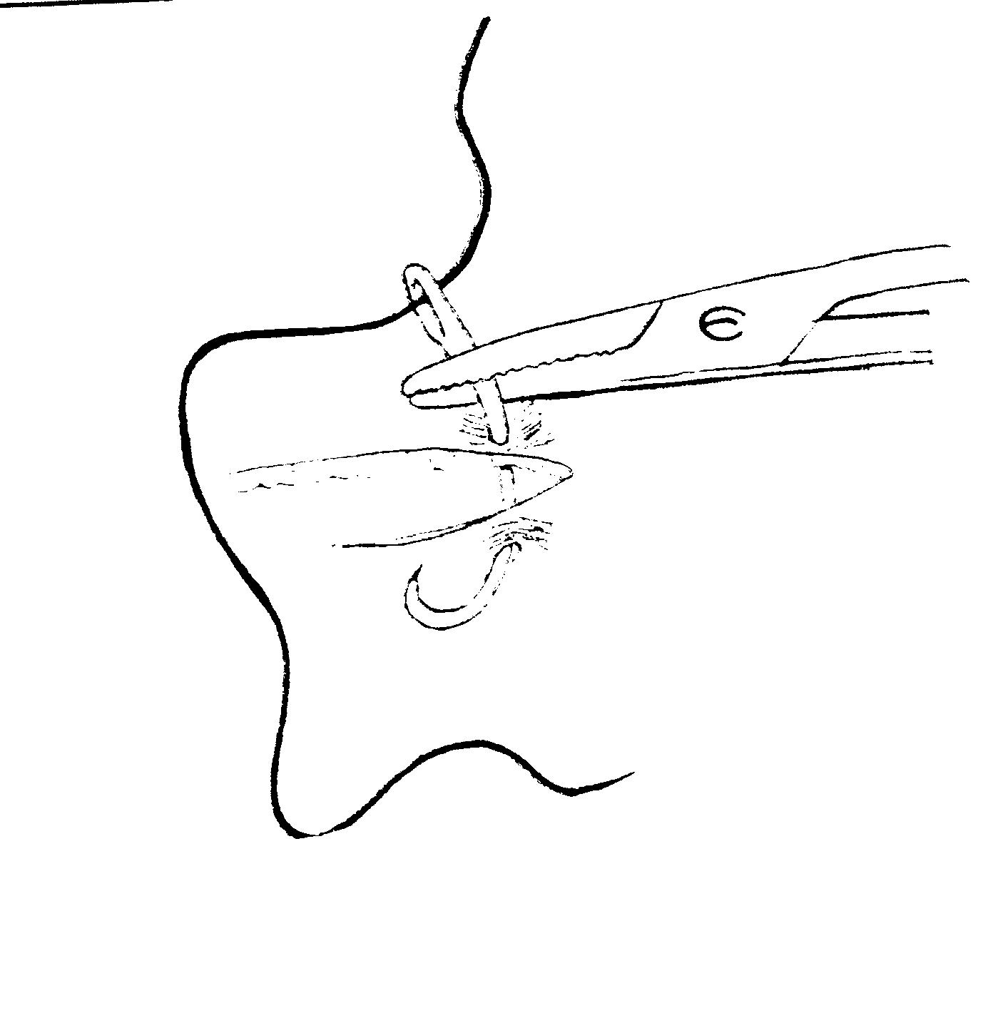 tratamentul plăgii între degete