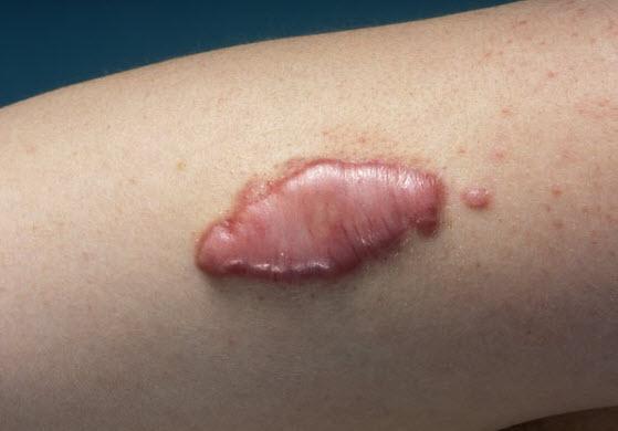 Ce trebuie sa faceti in cazul unor accidente soldate cu plagi?