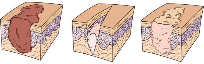 Pansament poliuretan plaga cot-călcâi Extracare, 16x18 cm, Biofarm