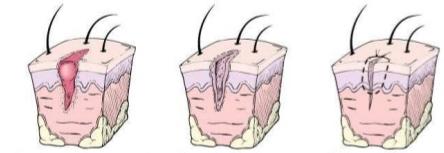 tratamentul plăgilor cotului fluxul sanguin îmbunătățind medicamentele pentru osteochondroza cervicală